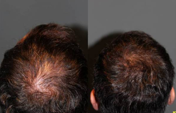 before after photo of a mans hair after undergoing a procedure