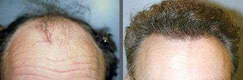 Before and after one hair transplant using the follicular unit extraction method of hair transplantation with NeoGraft, one session of 3000 hair grafts. -