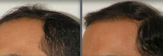 Time elapse of hair transplant session using grafts by follicular grafting using the thin strip method. -