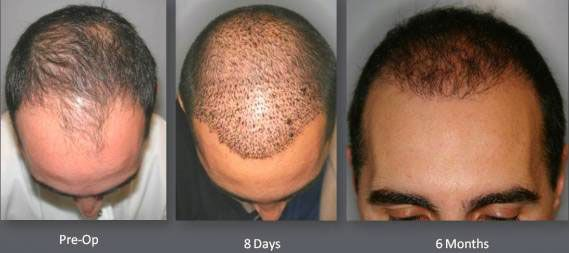 Time elapse of male hair transplant using NeoGraft. -
