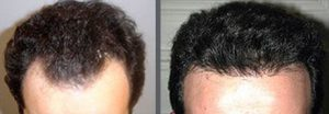 Before and after one hair transplant using the follicular unit extraction method of hair transplantation with NeoGraft, one session of 1500 hair grafts. -