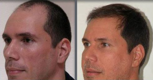 Before and after one hair transplant using the follicular unit extraction method of hair transplantation with NeoGraft, one session of 2000 hair grafts. -