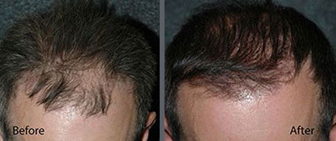 Before and after one hair transplant session of 1500 grafts by follicular grafting using the thin strip method. -