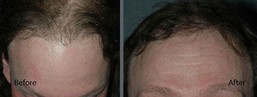Before and after one hair transplant session of 1000 grafts by follicular grafting using the thin strip method. -