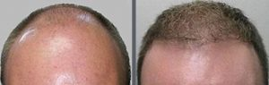 Before and after one hair transplant using the follicular unit extraction method of hair transplantation with NeoGraft, one session of 2500 hair grafts. -