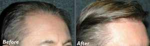 Before and after hair transplant session of 2000 grafts by follicular unit grafting using the thin strip method. -