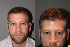 36 yo male 6 months after neograft hair transplant procedure with 1500 grafts- View 5 -