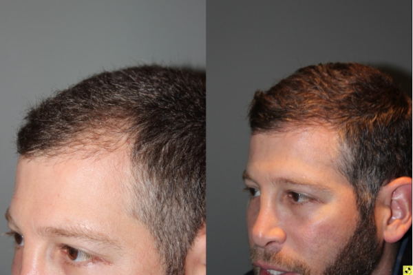 36 yo male 6 months after neograft hair transplant procedure with 1500 grafts- View 1 -