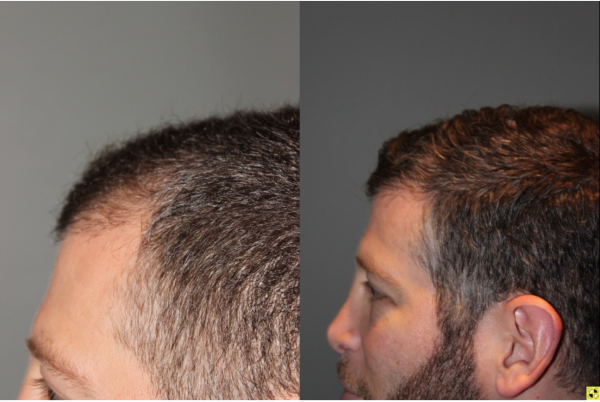 36 yo male 6 months after neograft hair transplant procedure with 1500 grafts- View 2 -