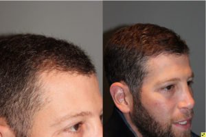36 yo male 6 months after neograft hair transplant procedure with 1500 grafts- View 4 -