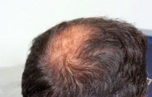 Man with Balding Pattern Atlanta, GA