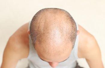 main with a bald head