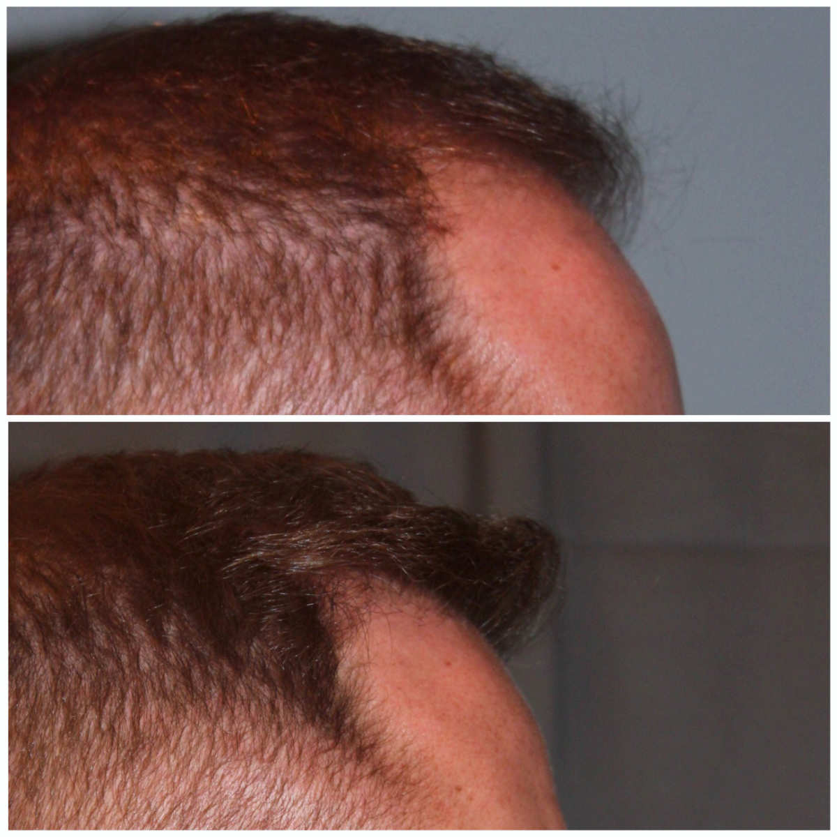34 year old male 7 months post 2000 graft frontal hairline hair transplant. About 60% regrowth of what he will have at 18 months.