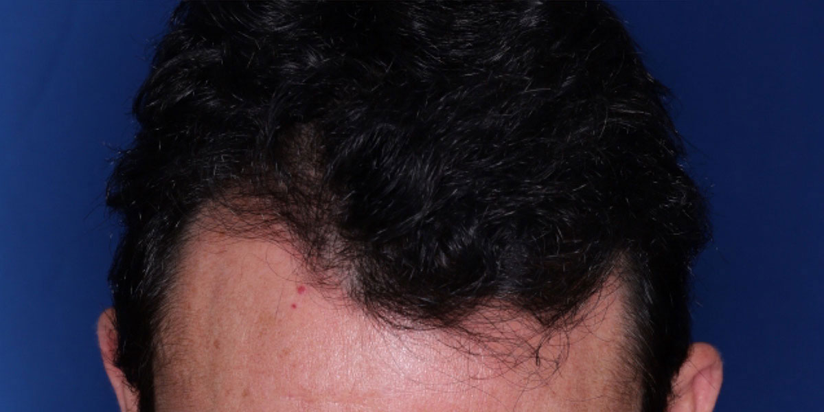 after the hair transplant