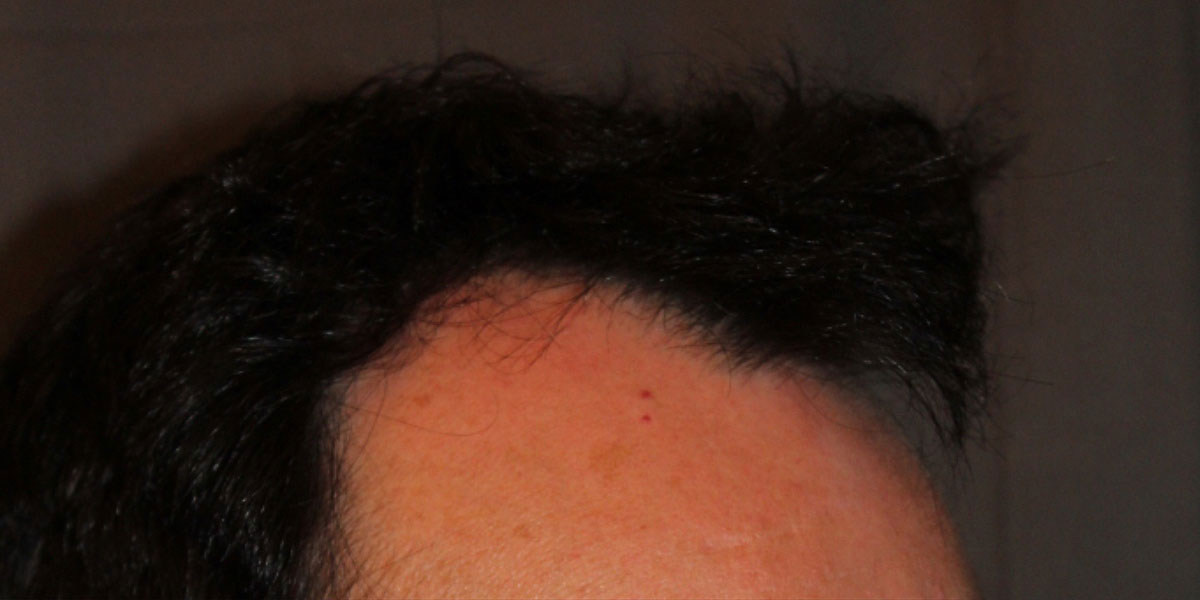 before the hair transplant