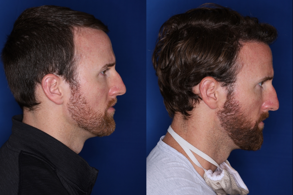 36 year old 8 months following 2500 grafts to frontal, temporal hair line
