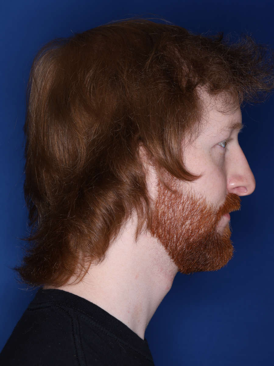 27 year old male 13 months following a 3000 graft hair transplant - after