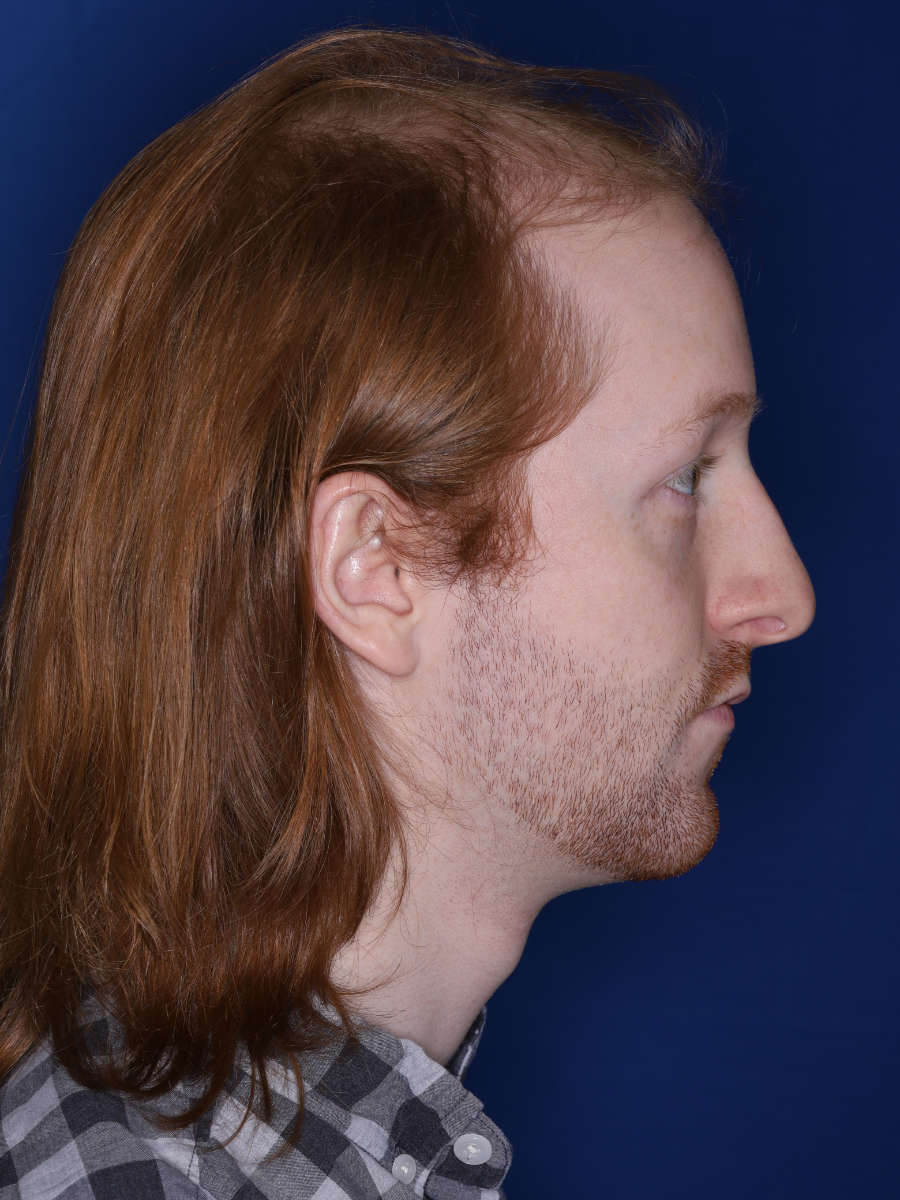 27 year old male 13 months following a 3000 graft hair transplant - before