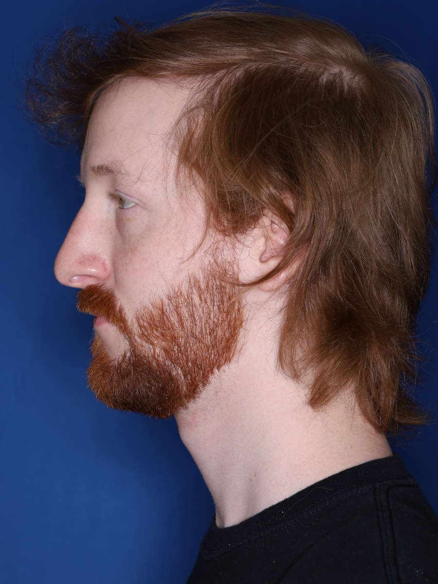 27 year old male 13 months following a 3000 graft hair transplant - a