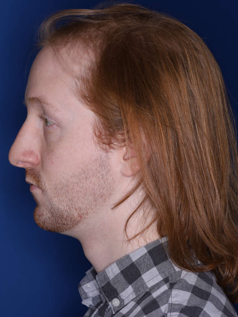 27 year old male 13 months following a 3000 graft hair transplant - b