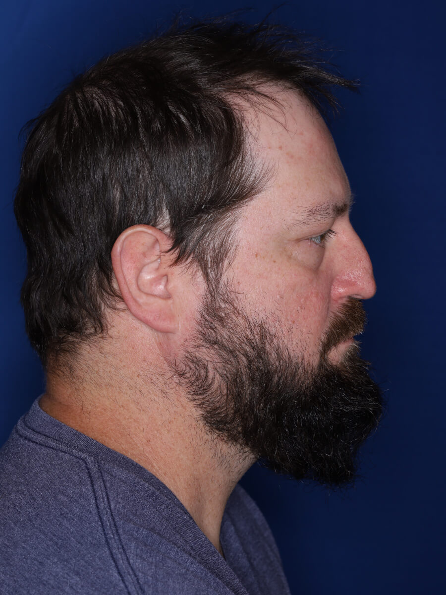 45 year old male 1 year post op from 3000 grafts throughout the entire scalp.