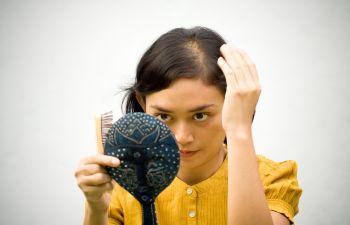 Woman With Hair Loss Atlanta, GA